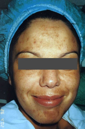 Hispanic woman 30-40 year old treated for Melasma and Acne Scars