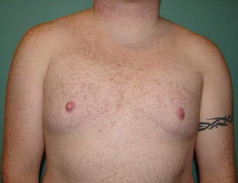 Late results of FTM chest masculinization