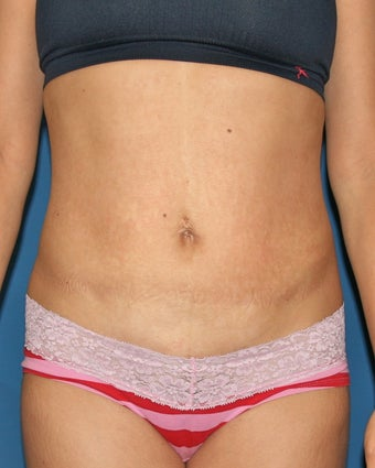 Vaser Liposuction of the Abdomen