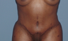 Tummy tuck (abdominoplasty) redo (secondary)