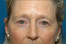 Lower lid bags removed via blepharoplasty