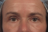 Upper eyelid and festoon treatment
