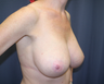 Breast Reduction / Lift, 35 year old Woman