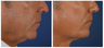 Before & After Liquid Necklift