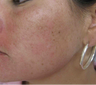 Acne scarring treated with filler