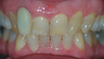 Removing a horrid front tooth after 35 years with Invisalign