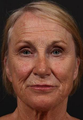 This patient underwent full face fractional CO2 laser resurfacing