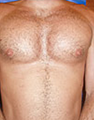 Pec Implants