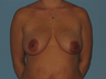 Mommy Makeover patient had a Breast Lift, an Abdominoplasty and VASER® LipoSelection