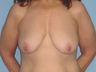This patient had Abdominoplasty and VASER LipoSelection of abdomen, flanks, axilla and a Mastopexy.