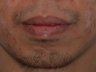 Lower Lip Reduction