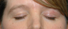 Left brow defect after removal of skin cancer by Mohs surgery