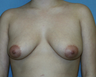 30 year old for breast augmentation. Does not wish to have a lift.