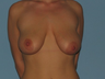 Patient underwent a Breast Augmentation and a Breast Lift.