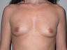 40 year old for breast augmentation.