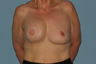 This Breast Reconstruction patient had reconstruction on the right breast and reduction on the left.