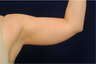 Arm Lift - Liposuction