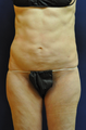 Female Abdominal Liposuction