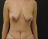 Breast Augmentation Mastopexy and Tummy Tuck