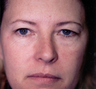 Upper and lower blepharoplasties (eyelid surgery)