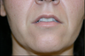 Upper Lip Lift or Lips