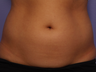 CoolSculpting by Zeltiq to Adbomen