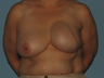 Received a left breast implant and a Breast Reconstruction after tissue expansion.