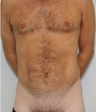 Male Liposuction - 3 months post op