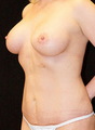 Breast Implants & Tummy Tuck