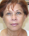 Mini Face Lift with Bilateral Brow Lift