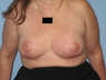 woman underwent a Breast Reduction procedure.