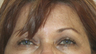 60 year old female status post in Office Setting Bilateral Brow Lift.