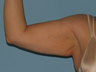 Brachioplasty and VASER LipoSelection of her upper arms.