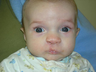 Pediatric Cleft Lip and Palate Repair Surgery