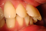 Closing an extraction space with Invisalign