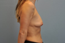 Breast Lift patient was concerned about sagging breasts as well as a loss of breast volume.