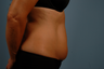 truSculpt- one treatment to abdomen