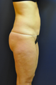 41 Year old Female Liposuction abdomen, inner thighs and knees