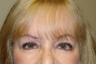 Endoscopic Browlift, Bilateral Upper and Lower Blepharoplasty, Canthopexy