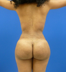 23 y.o. female - Liposuction and fat transfer to buttocks & hips - 1150 cc per side