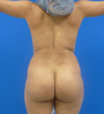 Brazilian Butt Lift