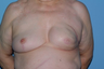 70-year-old Breast Reconstruction patient had bilateral reconstruction