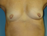 Nipple Reduction