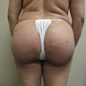 44 Year Old Female Fat Transfer to Buttox