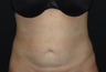 Tummy Liposuction