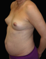 Breast Augmentation and Tummy Liposuction