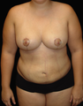Breast Reduction/Lift and Tummy Liposuction