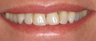 10 Porcelain Veneers
