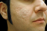 CO2 Affirm - Acne Scars