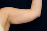 Liposuction - Upper Arms